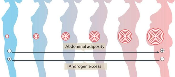 resistencia a la insulina sindrome de ovario poliquistico
