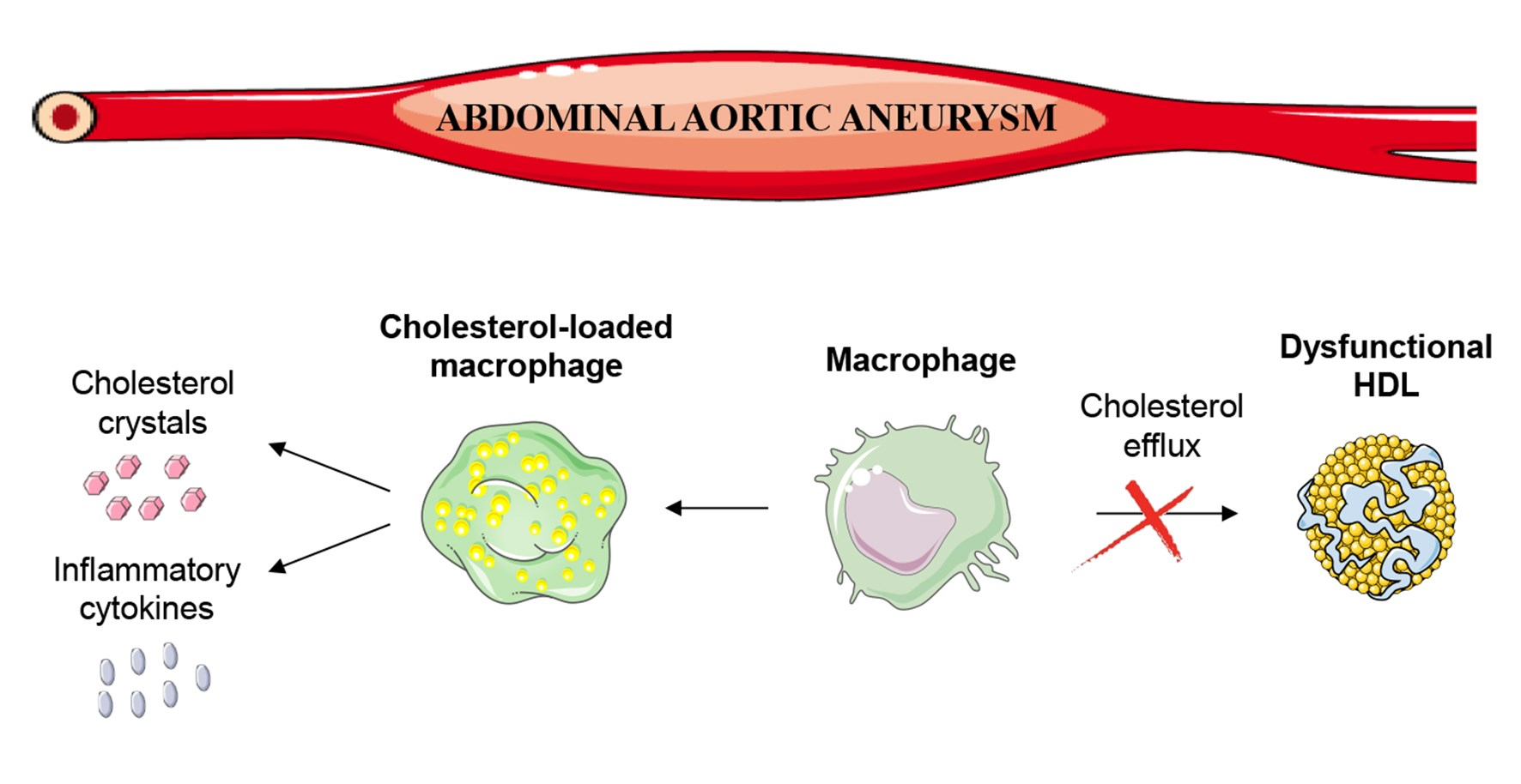 enfermedades de aneurisma abdominal